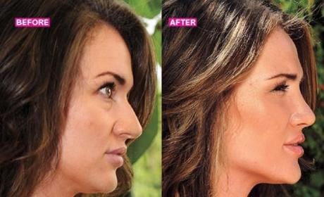 Bachelor Pad Plastic Surgery: Ella Nolan Transforms!