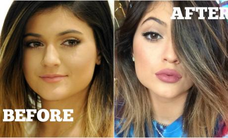 Did Kylie Jenner get lip injections?