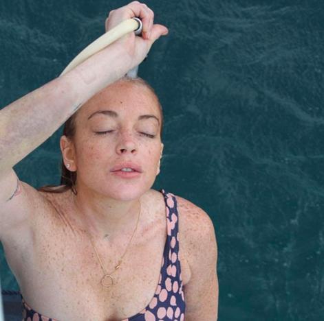 Lindsay Lohan Bruise Pic