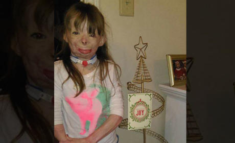 Inspirational Burn Victim Would Love a Christmas Card from Katy Perry