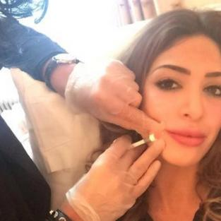 Farrah Abraham Face Injection
