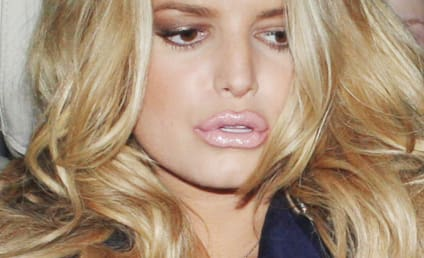 Best of Celebrity Lip Injections Gone Awry