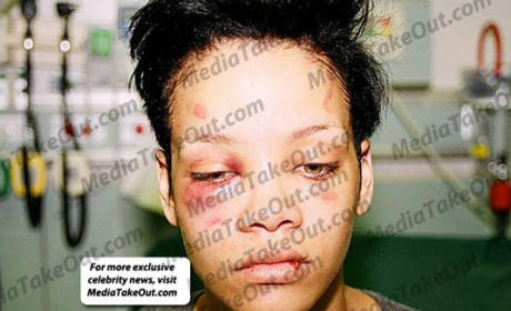 Battered Rihanna Picture