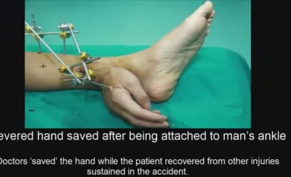 Hand Attached to Ankle of Man After Accident Severed It: Watch!