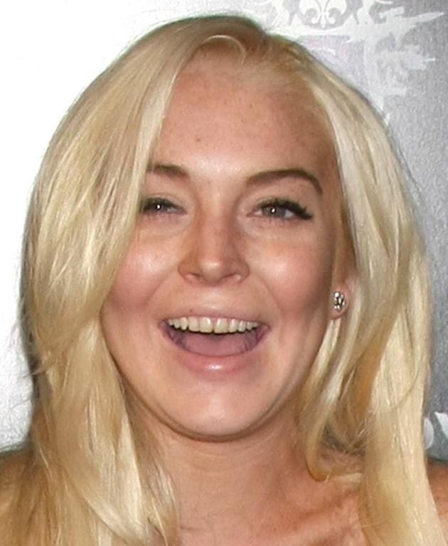 Lindsay's Teeth