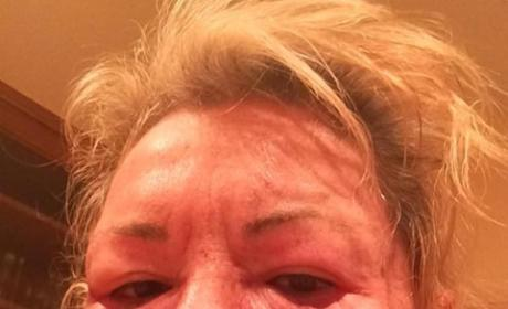"Roseanne Barr Tweets Bloody Face Photo, Jokes About ""Tussle with Bill Cosby"""
