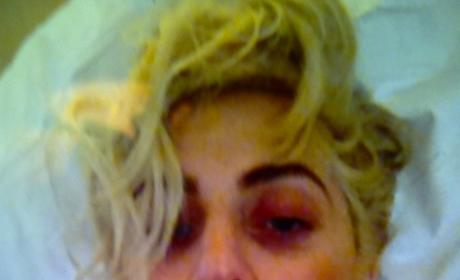 Lady Gaga Black Eye Photo: Revealed!