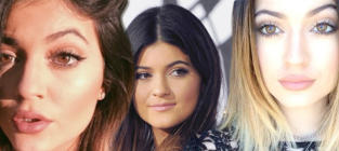 Kylie Jenner Lips: SEE THE TRANSFORMATION!