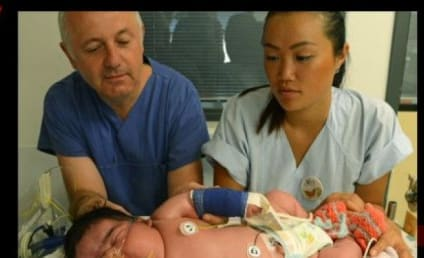 Heaviest Baby in German History Born: 13.47 Pounds!