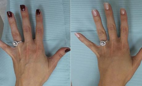 Hand Plastic Surgery