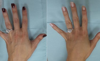 Woman Gets Plastic Surgery So Hands Are More Selfie-Worthy (Seriously)