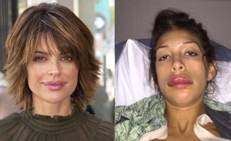 "Lisa Rinna Posts Farrah Abraham Lip Injections Pic, Apologizes For ""Starting This S--t"""
