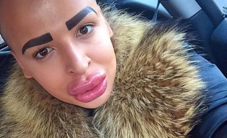 British Man Spends $150,000 on Plastic Surgery to Look Like Kim Kardashian, Probably Regrets It