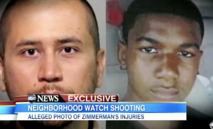 George Zimmerman Photo Shows Bloody Head, May Bolster Self-Defense Claim