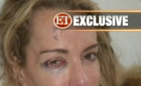 Taylor Armstrong Black Eye Photos: A Hoax?!?