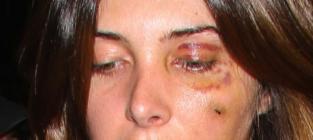 Brittny Gastineau Black Eye Picture