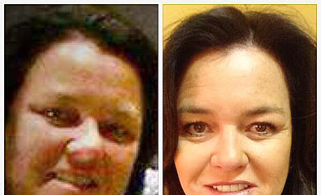 Rosie O'Donnell Weight Loss Photos