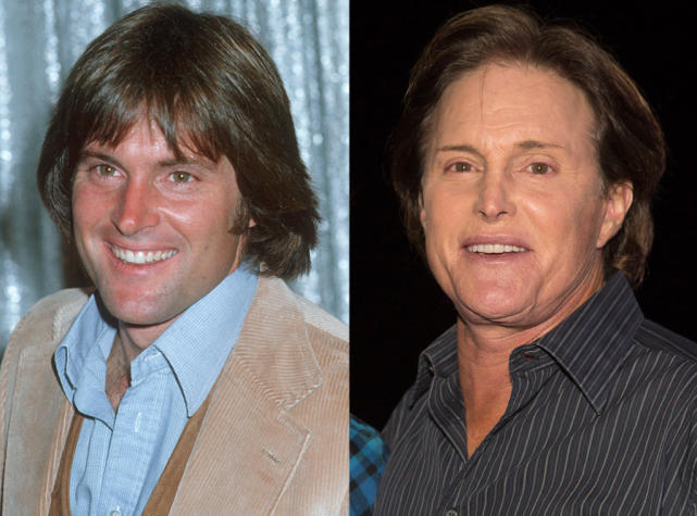Celebrities who have admitted to plastic surgery bruce jenner