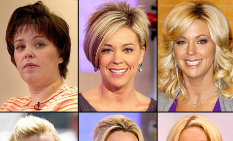 Did Kate Gosselin Get a Face Lift?