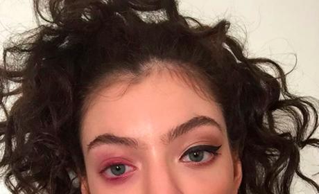 Lorde Pink Eye Pic