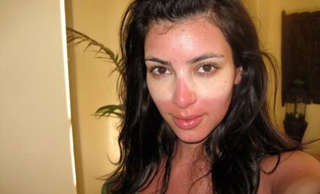 Kim Kardashian Sunburn Pic