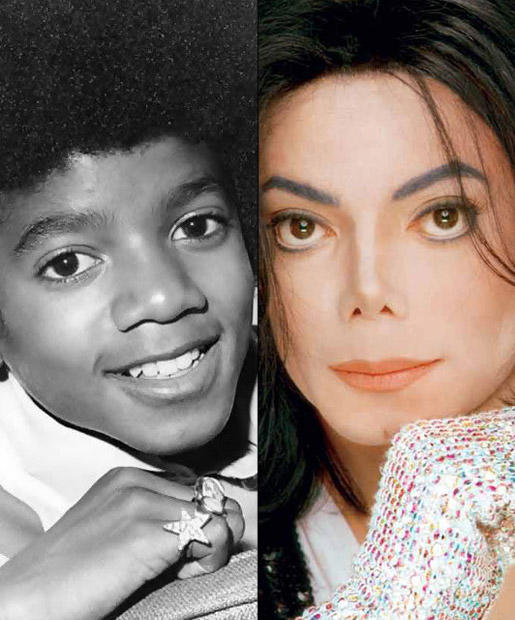 Image result for Celebrity Nose Jobs michael jackson