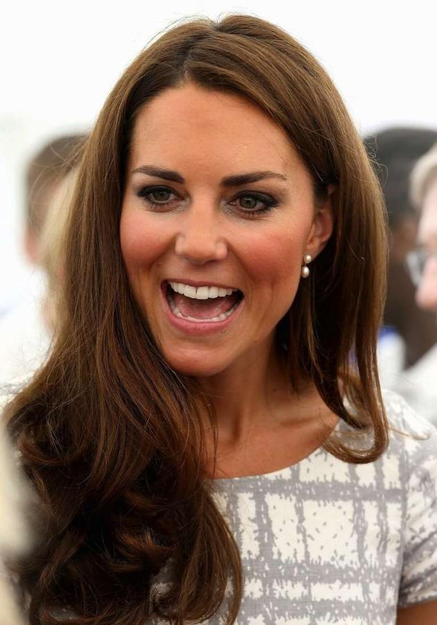 Kate Middleton White Teeth