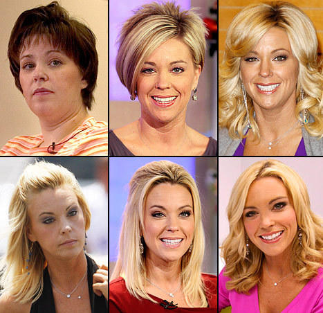 Kate Gosselin Plastic Surgery