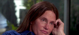 Bruce Jenner Sex Change Divides Family: It's Team Jenner vs. Team Kardashian!