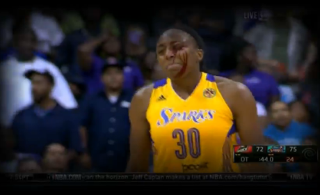 WNBA Celebrations Results in Bloody Wound