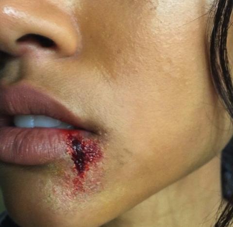 Karrueche Tran Posts Bloody Lip Photo, Chris Brown Fans Not Happy
