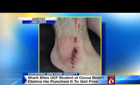 Florida Man Punches Shark That Bit Him