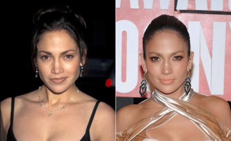 Jennifer Lopez Slams Plastic Surgery Rumor