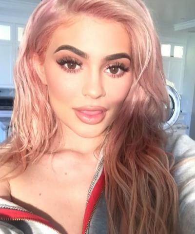 Kylie Jenner Lips: HUGE!