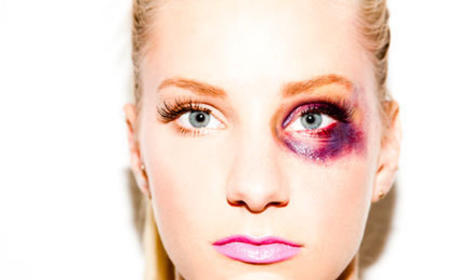 "Heather Morris, Photographer Court Controversy with ""Bruised-Up Barbie"" Pics"