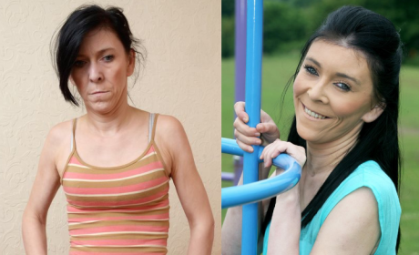 """Zara Hartshorn, Teen With """"Benjamin Button"""" Syndrome, Gets Life-Changing Face-Lift"""