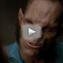 Teen Wolf Season 3 Trailer: This Might Hurt