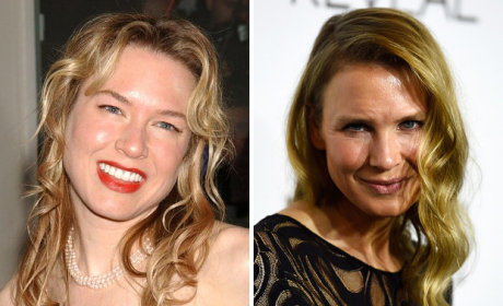 Renee Zellweger Then, Now