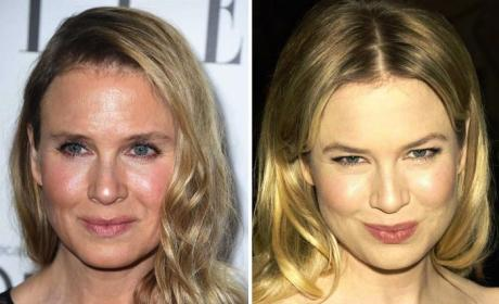 Renee Zellweger Looks Like THIS Now