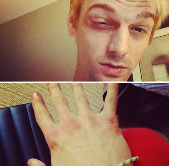 Aaron Carter Beat Up
