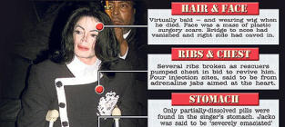 Michael Jackson Dead When Paramedics Arrived; Secret Drug Stash Found at Singer's House