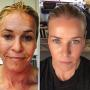 Chelsea Handler Looks Half Her Damn Age After Laser Facial: See the Insane Pics!