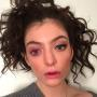 Lorde: What Is Wrong With Her Eye???