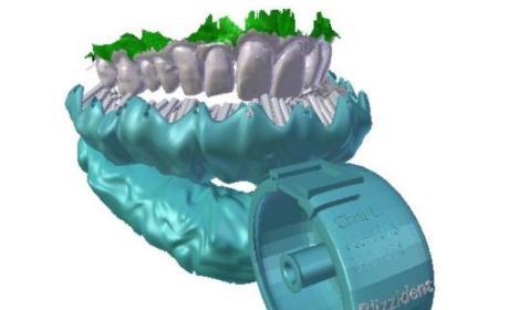 Blizzident Toothbrush: AMAZING!
