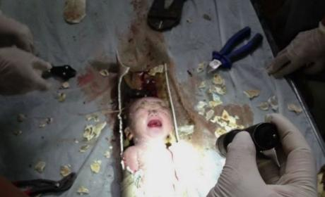 Chinese Baby Flushed Down Toilet by Mother, Found ALIVE