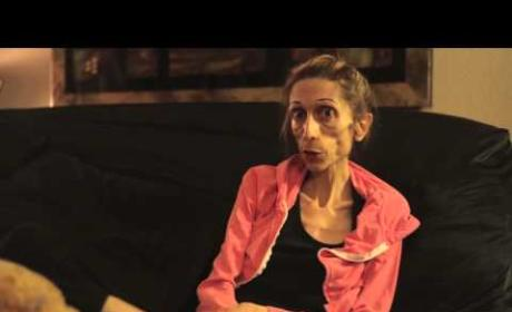 Anorexic Actress Weighs 40 Pounds (Yes, FORTY), Pleads For Help