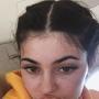 Kylie Jenner, Freckles