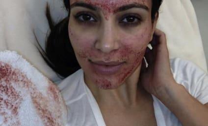 Kim Kardashian Sneak Peek: A Vampire Facial!