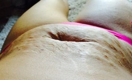 Mother of 5 Stands Up to Bullies, Posts Photo of Stretch Marks on Facebook