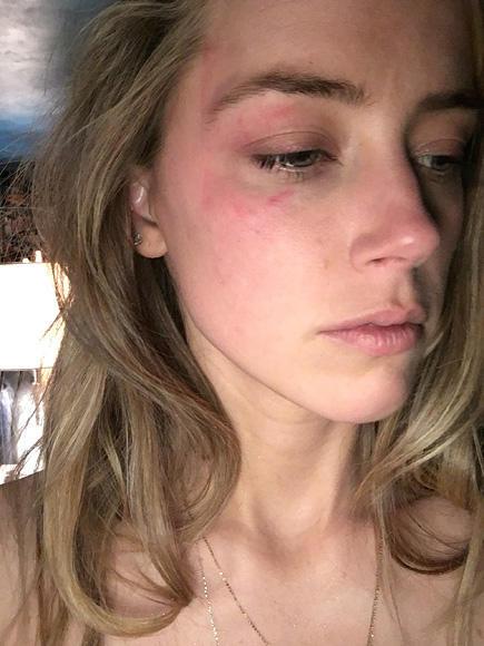 Facial Bruises 116